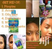 Permanent Solution To Pimples Acnes Dark Spots Rashes Sun Burns | Skin Care for sale in Machakos, Athi River