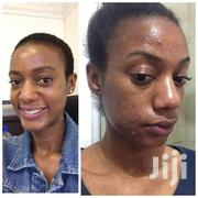 Spots and Pimples Remover | Skin Care for sale in Nairobi, Kahawa West