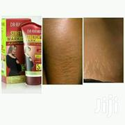 Stretch Marks Cream | Bath & Body for sale in Nairobi, Nairobi Central
