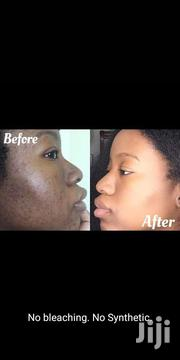 Face Caring | Skin Care for sale in Meru, Ntima East