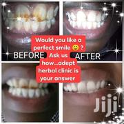 Whitening Brown Teeth | Health & Beauty Services for sale in Nakuru, Nakuru East