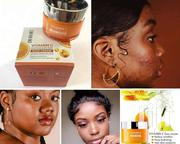 Vitamin C Face Cream That Clears All The Pimples And Dark Spots | Skin Care for sale in Nairobi, Nairobi Central