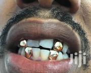 Gold Tooth Cup | Jewelry for sale in Nairobi, Nairobi Central